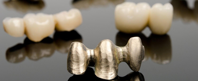 Erfolgreiche Dentallabors sind Dienstleister und Problemlöser für Zahnarztpraxen und Patienten
